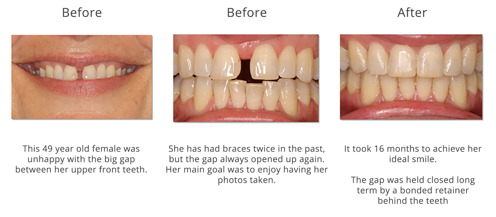 The Ultimate Guide To How Long Do Braces Take
